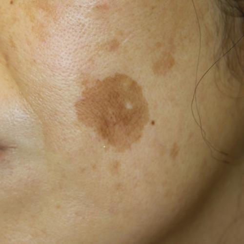 老人性色素斑|ピコスポット