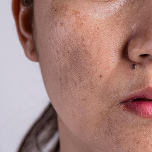 肝斑|ピコレーザー