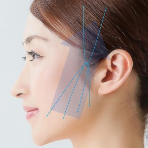 ミントリフト|福岡市中央区天神の美容外科・美容皮膚科