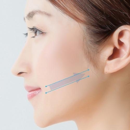 スプリングアプトス|福岡市中央区天神の美容外科・美容皮膚科