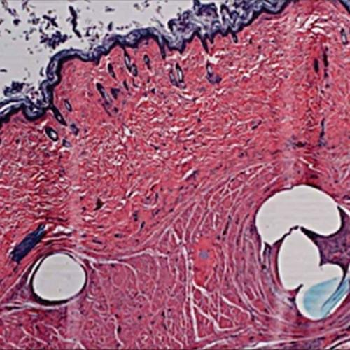 PCL(ポリカプロラクトン)|VOVリフト