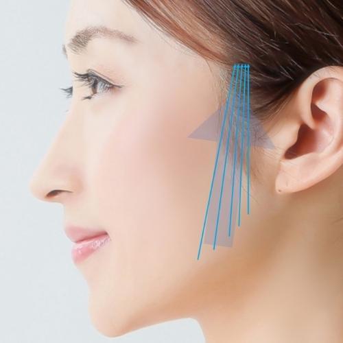 ウルトラリフト|福岡市中央区天神の美容外科・美容皮膚科