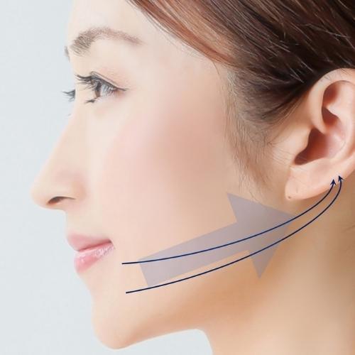 テスリフト|福岡市中央区天神の美容外科・美容皮膚科