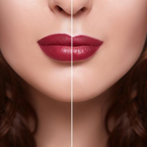「Lip Flip ボトックス」は効果が短い